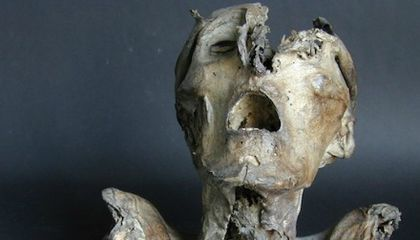What Does This Head From the Thirteenth Century Tell Us About Medieval Medicine?