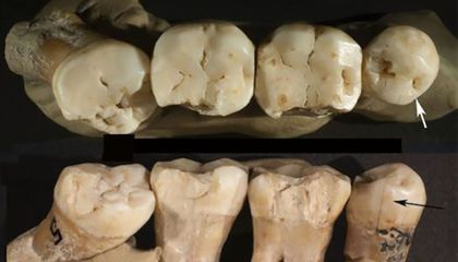 Neanderthals May Have Used Toothpicks to Treat Aching Teeth