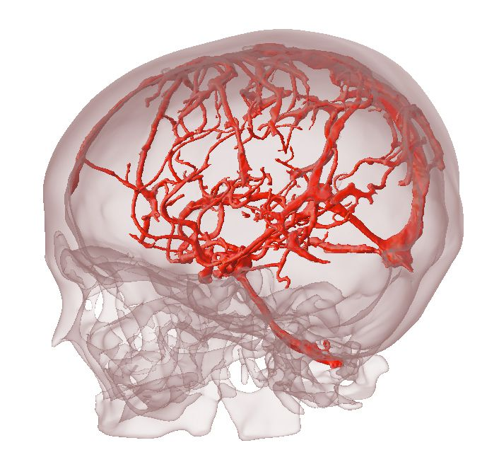 Doctors Can Study 3D Printed Models of Your Organs Before Surgery ...