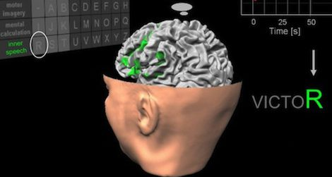 The system detects patients' thoughts via an fMRI machine and translates these into specific letters.