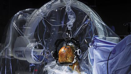 Inside the Science of an Amazing New Surgery Called Deep Brain Stimulation