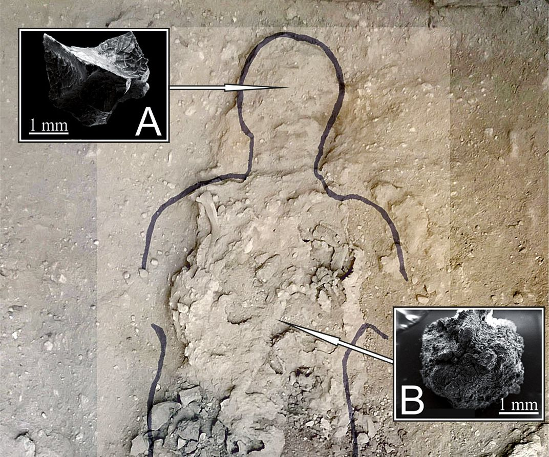 An outline of a male figure is drawn into the ground, with two images pointing to his head and chest where (A) brain tissue and (B) spinal cord tissue were discovered