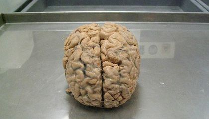 The Brains of People With Walking Corpse Syndrome Might Actually Be Shutting Down