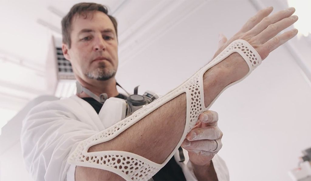 When Summit tore a ligament in his wrist, he printed his own post-operative brace. (Jon Betz)