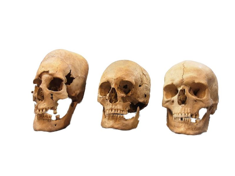Pointy Headed Medieval Skulls In Germany May Have Been Bulgarian