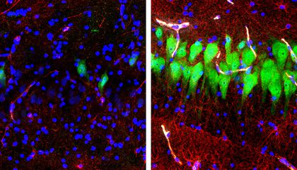 Scientists Revived Cells in Dead Pig Brains