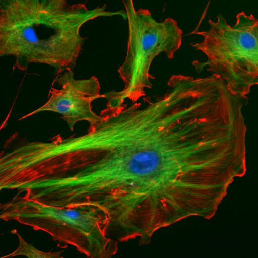 Endothelial cells under the microscope