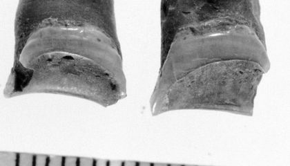 Worn-Out Teeth Expand the Narrative of the Ancient Egyptian Career Woman