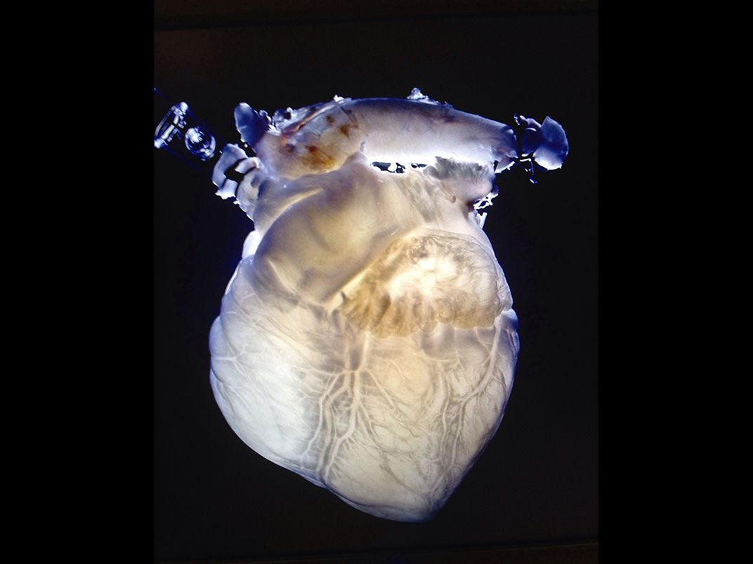Soon Your Doctor Could Print A Human Organ On Demand Innovation Lab Grown Blood Successfully Experimented Some Researchers Hope To Transplant Such Organs Into People After Seeding Them With Cells Texas Heart Institute