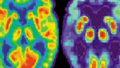 The Allure of Brain Scans