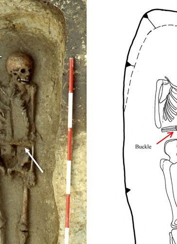 Caption: Medieval man used a knife as a prosthetic limb