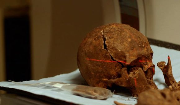 Preview thumbnail for video'Can Spit Prove This Skeleton Is King Richard III?