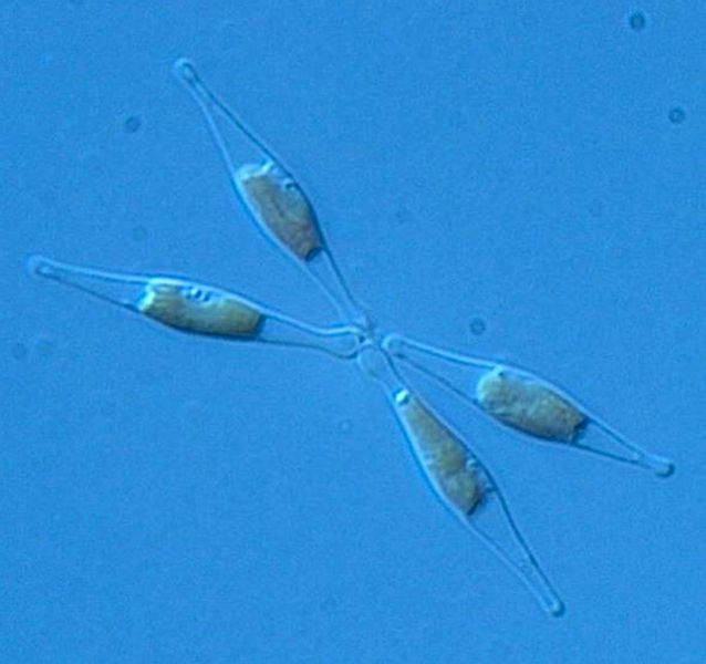 iron-fed diatoms