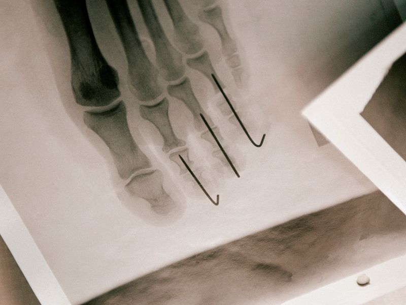 body-modification-foot-x-ray.jpg