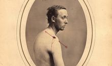 These Eerie Civil War Photos Changed How the U.S. Saw Veterans
