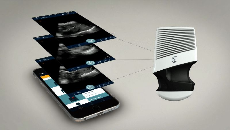 This Handheld Ultrasound Scanner Could Be the Next