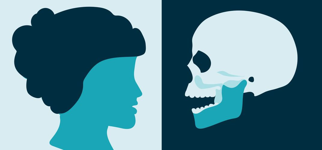 Caption: Alice Lee's Science of the Skull