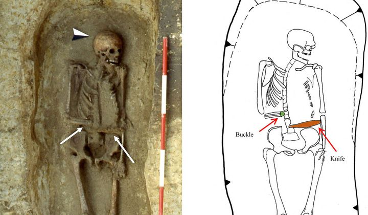Medieval man used a knife as a prosthetic limb