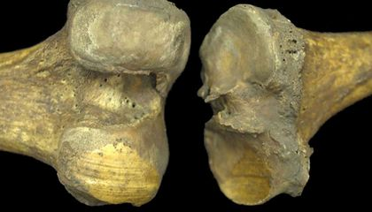 What a 6,000-Year-Old Knee Can Teach Us About Arthritis