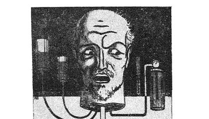 Good News, Everybody! Someone Once Patented Plans For Keeping A Severed Head Alive