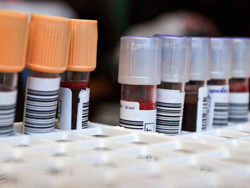 Blood test detects concussion related brain damage