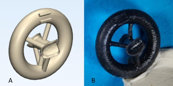 Doctors Are 3D Printing Ear Bones To Help With Hearing Loss ...
