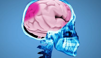 Ask Smithsonian: What Happens When You Get a Concussion?