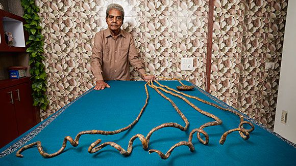 Man With World's Longest Fingernails Finally Gets a Manicure | Smart