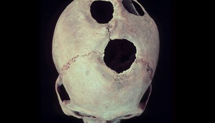 Drilling Deep: How Ancient Chinese Surgeons Opened Skulls and Minds