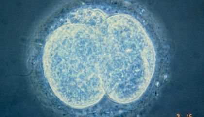Gene Editing in Human Embryos Ignites Controversy