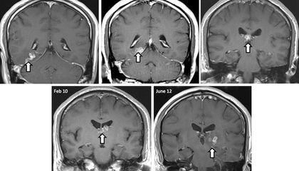 A Tapeworm Crawled Around In This Man's Brain for Years