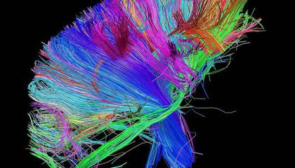 Can Brain Scans Really Tell Us What Makes Something Beautiful?