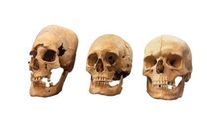 Pointy-Headed Medieval Skulls in Germany May Have Been Bulgarian 'Treaty Brides'