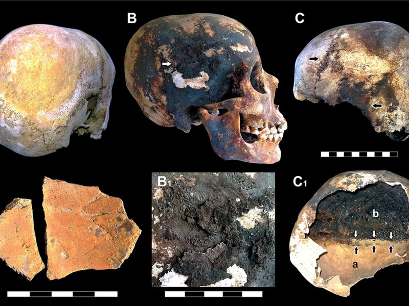 Mount Vesuvius Boiled Its Victims Blood And Caused Their Skulls To