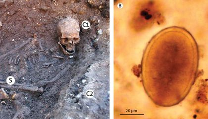 Richard III Had a Nasty Case of Roundworms