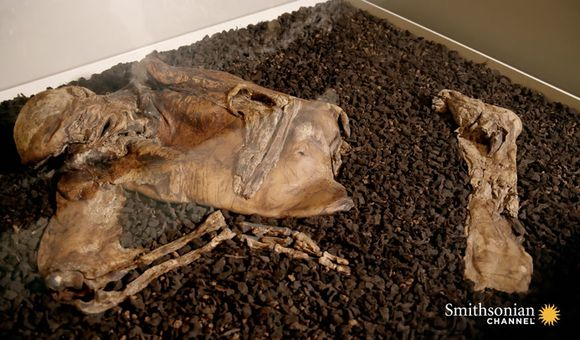 Preview thumbnail for video'The Stunningly Clear Features on the Lindow Man Mummy