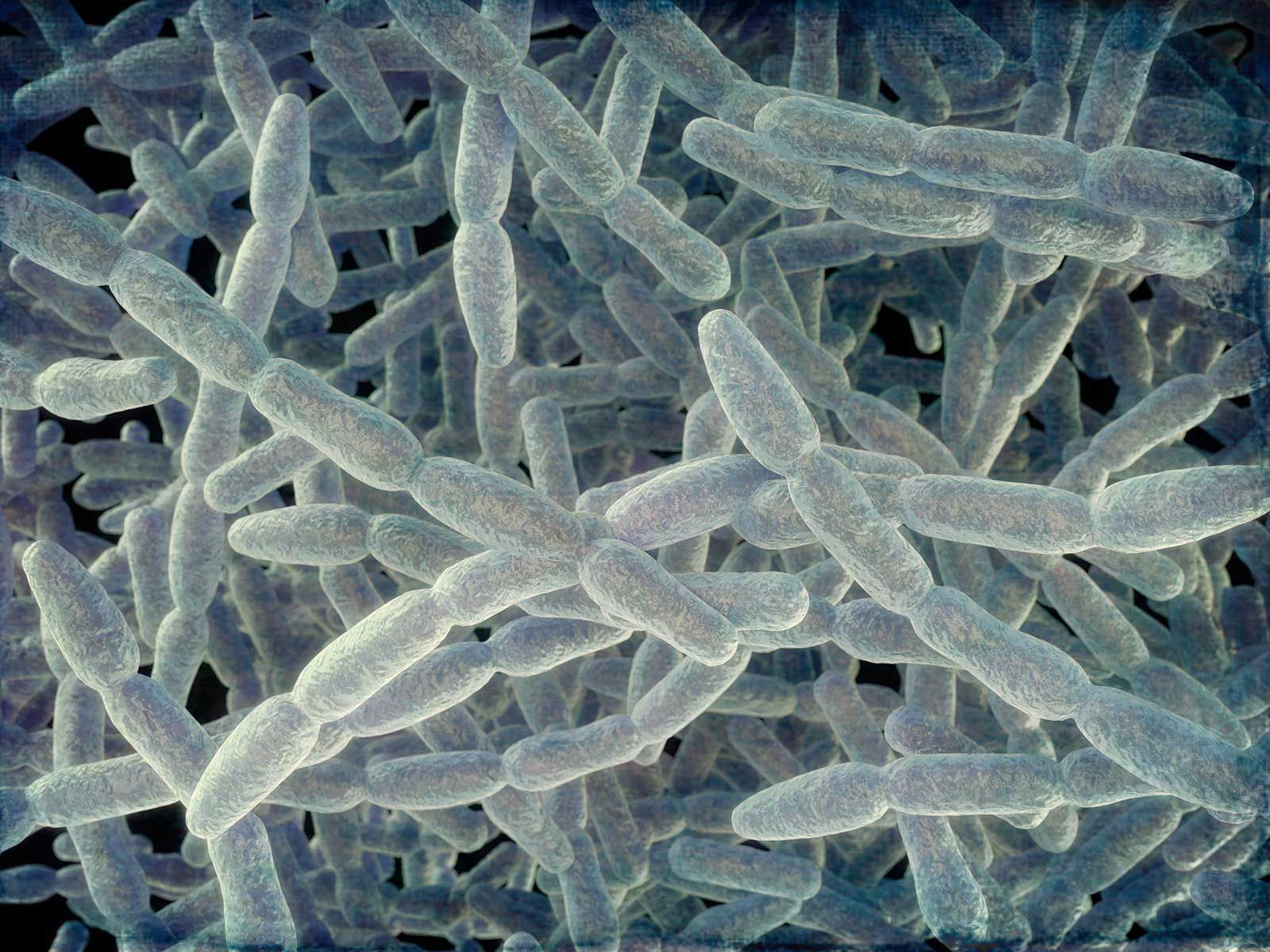 Why Reports of Legionnaires' Disease Are on the Rise in the United States