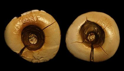 "13,000-Year-Old Fillings Were ""Drilled"" With Stone and Packed With Tar"