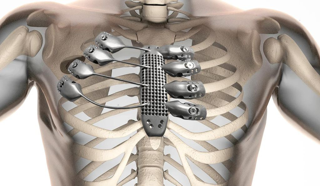 The implant screws into the remaining ribs.